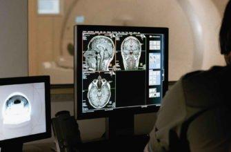 Врач делает магнитную томограмму мозга